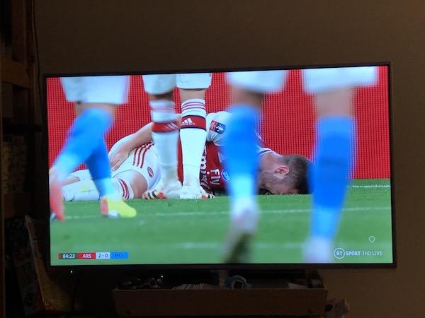 FAカップ 2020 準決勝 v マンチェスター・シティ ムスタフィ 怪我